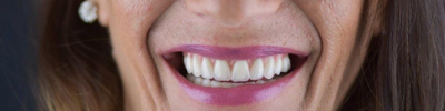 artigo blog beclinique 953x412 implantes dentários