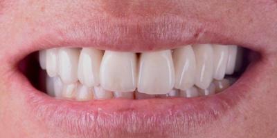 Implantes Dentários