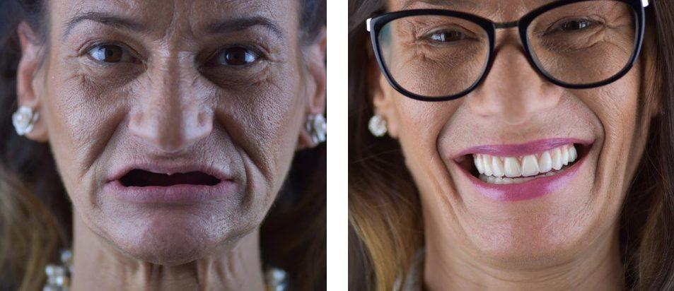 Implantes dentários: o novo sorriso da Rosa