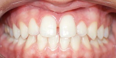 homepage caso clínico antes e depois beclinique