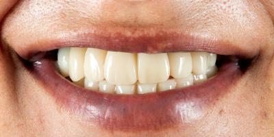 beclinique implantes dentários