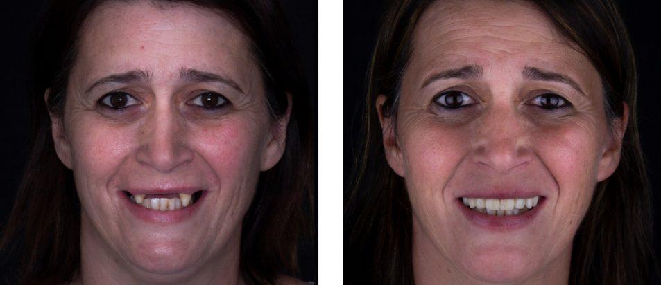 beclinique caso clínico dentes em 1 dia #2