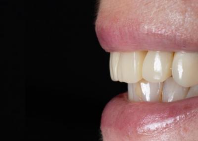 dentes em 1 dia — caso #2