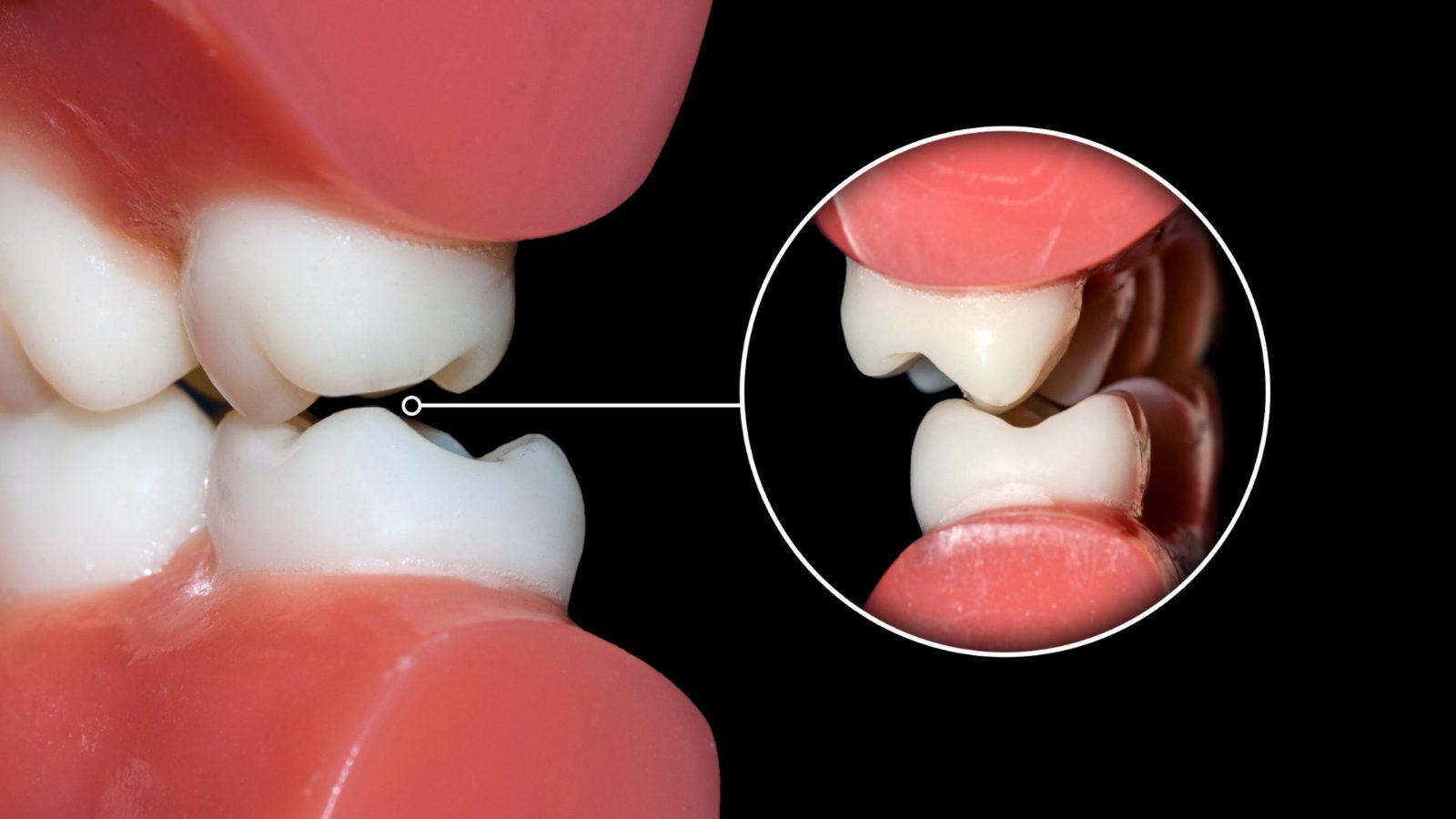 beclinique oclusão dentária