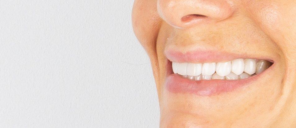 Facetas Dentárias — Caso Clínico #1