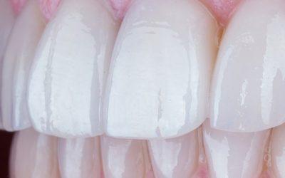 Facetas dentárias: a solução simples para um sorriso bonito