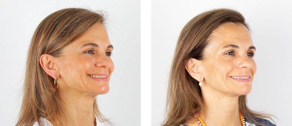 Facetas Dentárias - Antes e Depois Lateral - Beclinique