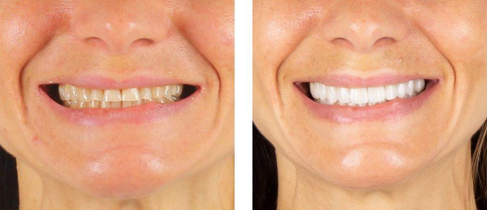 Facetas Dentárias - Antes e Depois Zoom - Beclinique