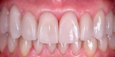 Sorriso com facetas dentárias