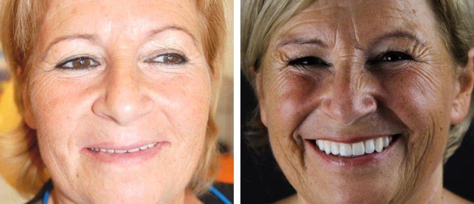 Antes e Depois beclinique caso clínico dentes em 1 dia #2