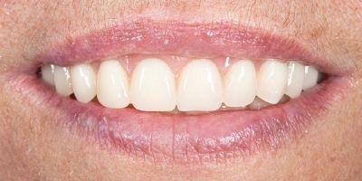 Laurinda Depois Implantes Dentários