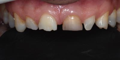 Facetas-Dentarias-Francisco-Depois