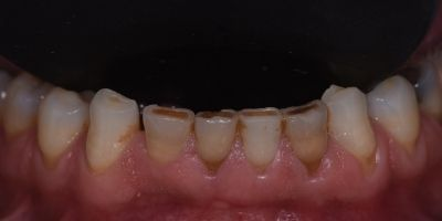 Facetas-Dentarias-Francisco-Antes-maxiliar-superior