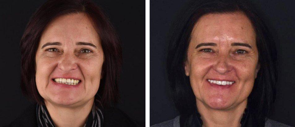 Reabilitação Oral Ana Monica Leonardo