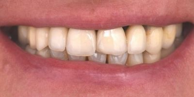 Reabilitação Oral Ana Monica Leonardo Depois