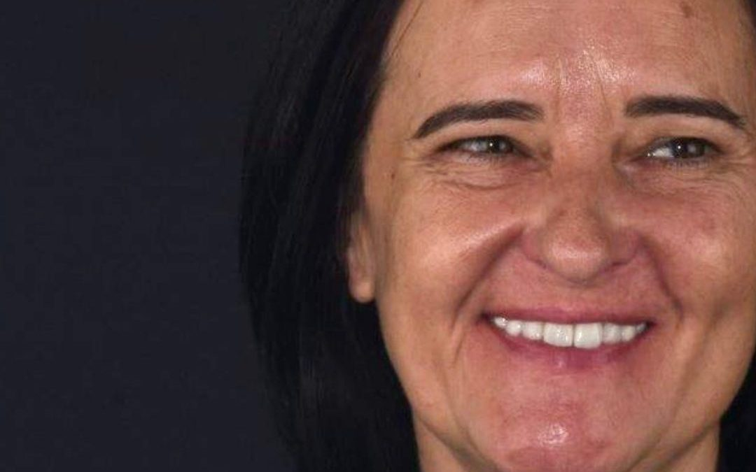 Reabilitação Oral Ana Mónica
