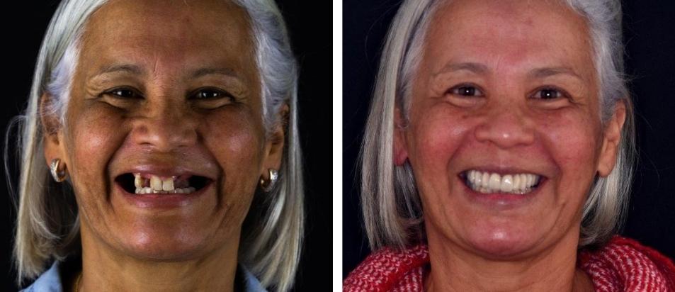 Reabilitação oral total antes depois Maria Santana