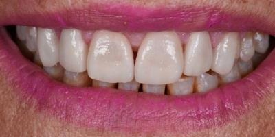 Site beclinique coroas dentarias dissilicato caso clinico Maria caso Antes Depois