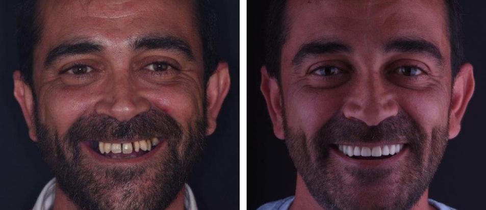 Clinica Dentária Beclinique Implante Dentário Cristovão
