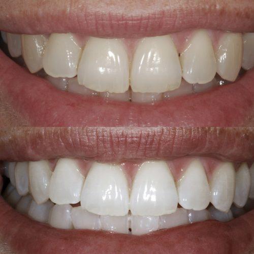 Caso clínico de Branqueamento Dentário
