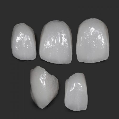 Caso clínico de Facetas Dentárias