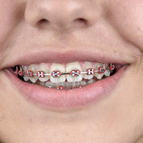 Caso clínico de Ortodontia