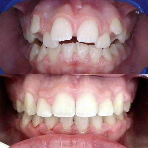 Caso Clínico de Ortodontia e Aparelhos Dentários