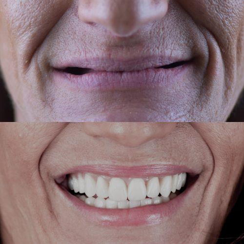 Caso de estudo de Implantes Dentários