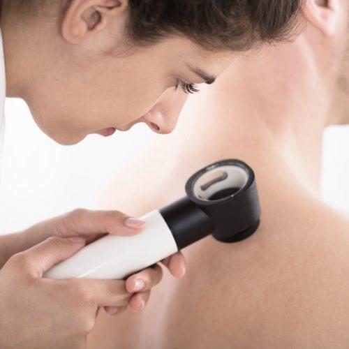 Consultas de Dermatologia - Epilaser