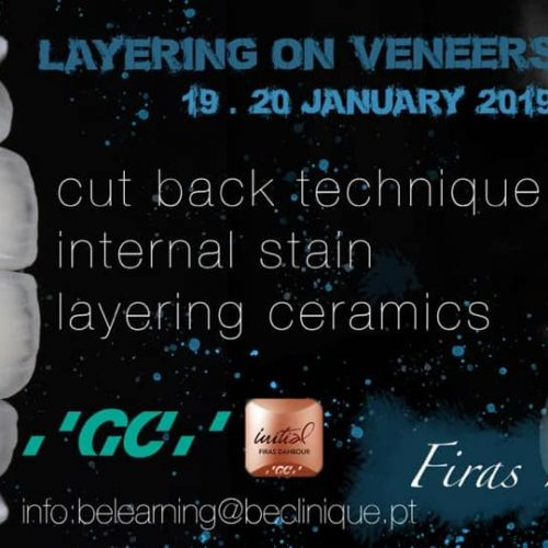 Curso de Layering on Veneers