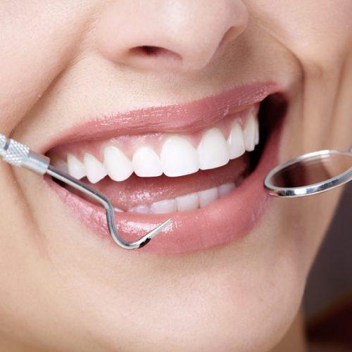 Consultas de Higiene Oral e Destartarização